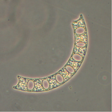 Photo of Eucampia chain segment by Dr. Vera Trainer and Brian Bill, NOAA