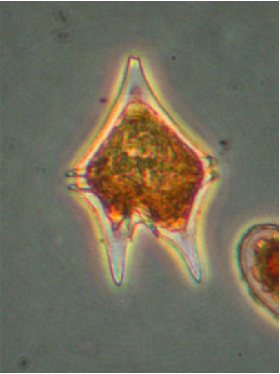 Photo of Protoperidinium oceanicum by Dr. Vera Trainer and Brian Bill, NOAA